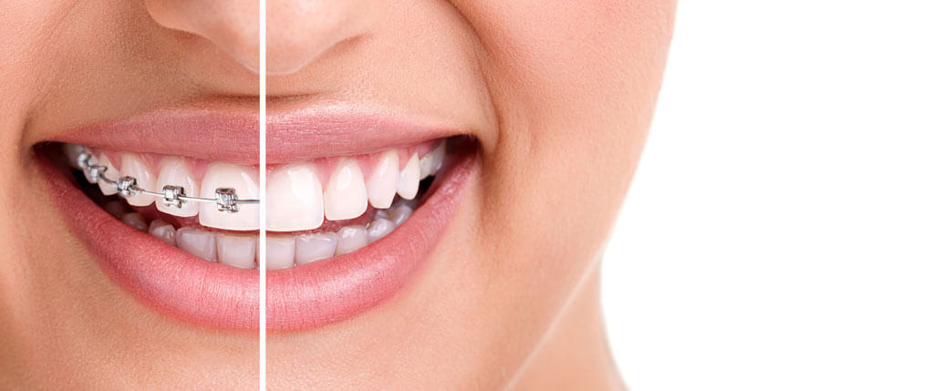 orthodontics monrovia